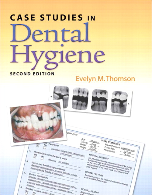 Case Studies in Dental Hygiene, CourseSmart eTextbook, 2nd Edition