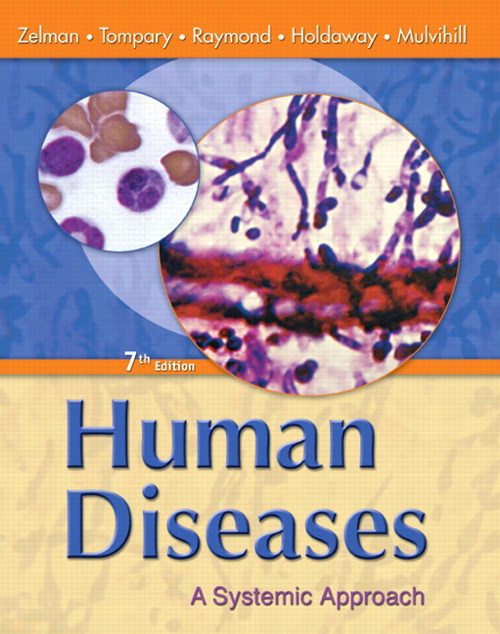 Human Diseases: A Systemic Approach, CourseSmart eTextbook, 7th Edition